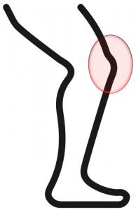 膝蓋大腿骨ストレス症候群